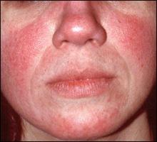 e82a1-facial-redness-cropped